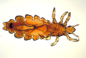 Pediculosis - Wikipedia