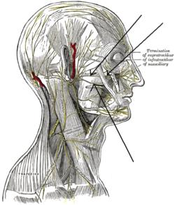 Zygomatic Facial 6