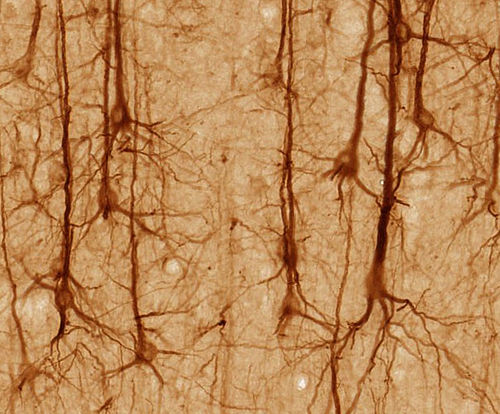 SMI32-stained pyramidal neurons in cerebral cortex