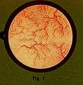 Traitâe pratique de cystoscopie et de cathâetâerisme urâetâeral (1914) (14753544286).jpg