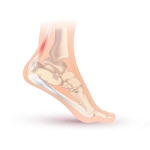 Achilles tendonitis.jpg