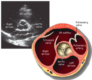 Short axis view of the heart with aortic valve