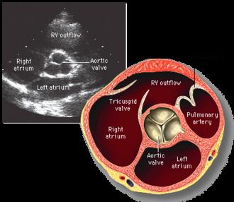 Transthoracic echocardiogram - Aortic valve  short axis
