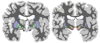 Coronal slices of human brain showing the basal ganglia, the striatum and pallidum globus pallidus: external segment (GPe), subthalamic nucleus (STN), globus pallidus: internal segment (GPi), and substantia nigra (SN).