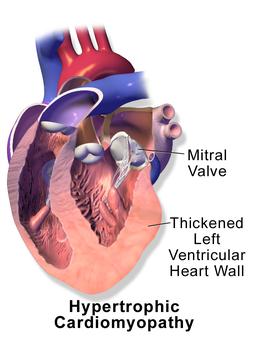 Blausen 0166 Cardiomyopathy Hypertrophic