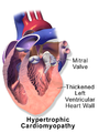 Blausen 0166 Cardiomyopathy Hypertrophic.png