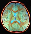 Brain MRI 4yF 133316-rgbca.png