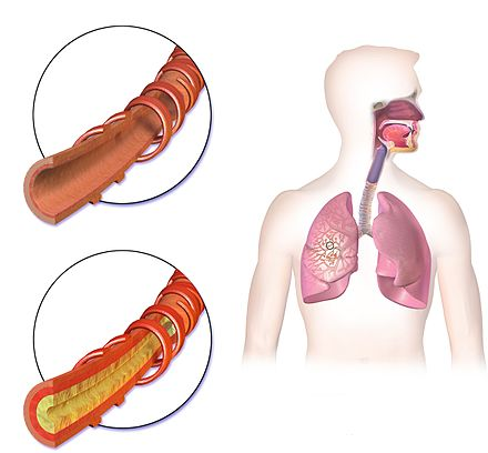 Frequently hemoptysis bronchitis is indicated. Lower left: Inflammation of the bronchus can bring about bloody mucus. Bronchitis Normal vs Affected Airway.jpg