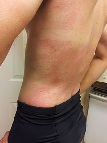 Red Itchy Bumps On My Stomach - Skin Forum - eHealthForum.com