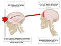 ConcussionFinal-3.png