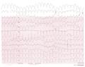 De-12lead vt3 (CardioNetworks ECGpedia).png
