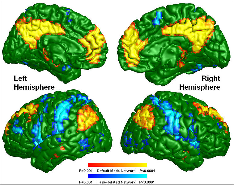 Αρχείο:Default mode and task-related maps for healthy subjects.jpg