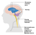 Diagram showing a brain shunt CRUK 052 edited.png