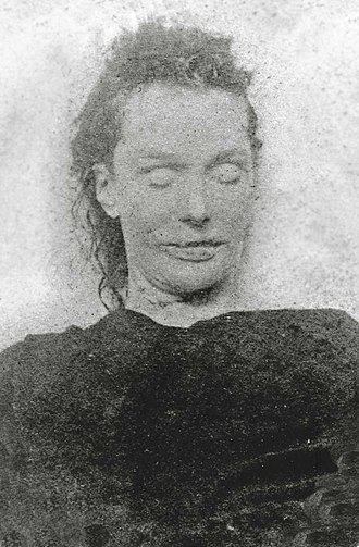 Elizabeth Stride - Mortuary photograph of Elizabeth Stride. She was 5 feet 2 inches tall (or 5 feet 5 inches, see Note 4), was missing her front upper teeth, and had curly dark brown hair, light grey eyes and a pale complexion.