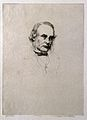 Joseph Lister, 1st Baron Lister (1827 – 1912) surgeon Wellcome V0003617.jpg