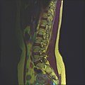 Lumbosacral MRI case 13 10.jpg