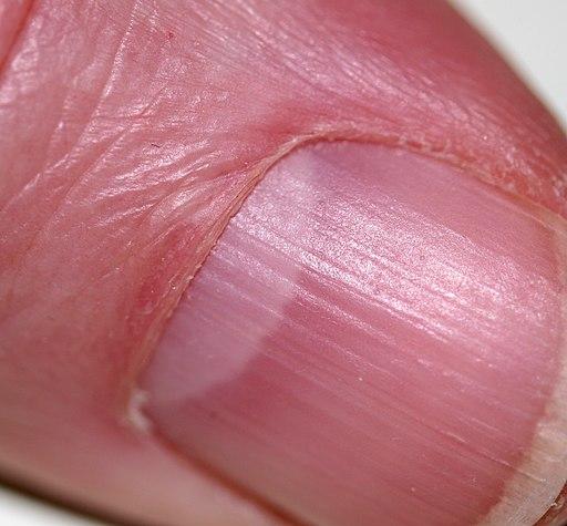 Lunula Was Bedeuten Halbmonde Auf Den Fingernägeln