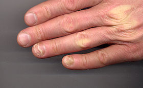 Onycholysis left hand 34yo male ring and little fingers non-fungal.jpg