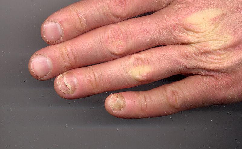 фото грибка на руках начальная стадия фото