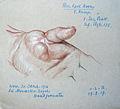 Otto Sohn-Rethel 27.03.1917 Verwundung Handgranate Hand.JPG