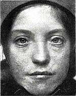 Patient with Waardenburg-Klein syndrome (1916).jpg