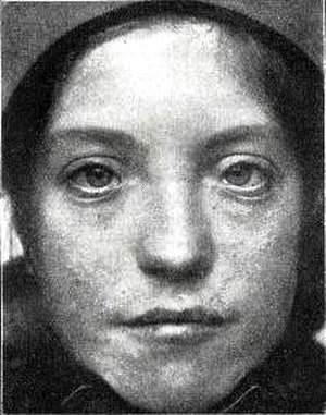 Myogenesis - Image: Patient with Waardenburg Klein syndrome (1916)