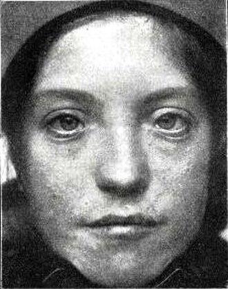 Myogenesis - Image: Patient with Waardenburg Klein syndrome (1916)