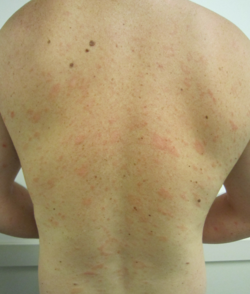 Pityriasis rosea on human back and front