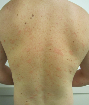 Pityriasis rosea - Wikipedia