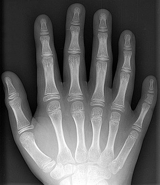 Supernumerary body part - An x-ray of a hand with a supernumerary digit (polydactyly)