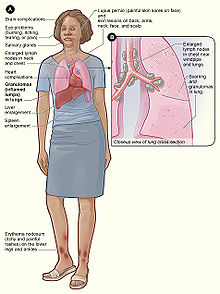 File:Sarcoidosis signs and symptoms.png - Wikipedia, the free ...