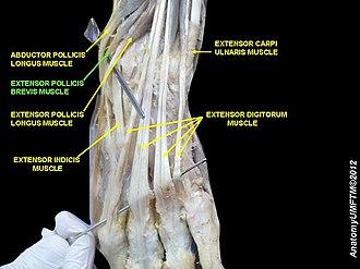 Extensor pollicis brevis muscle - Image: Slide 2RRRRR