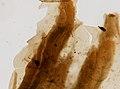 Trichinella spiralis (YPM IZ 095190).jpeg