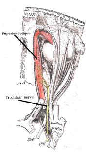 Congenital fourth nerve palsy human disease