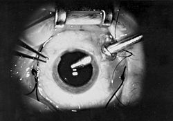 Vitrectomy3727-PH.jpg