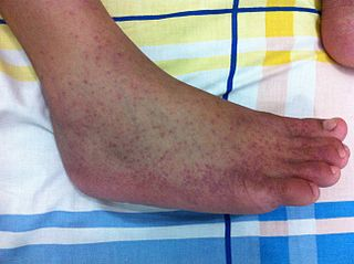 Chikungunya Infection caused by the chikungunya virus