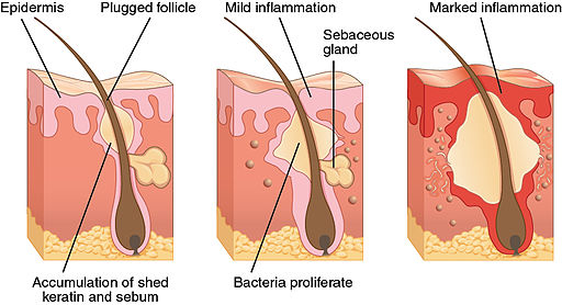 515 Acne formation