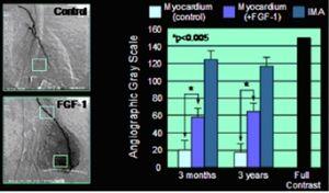 Fibroblast growth factor - Image: Angiogenesis Human Heart 1