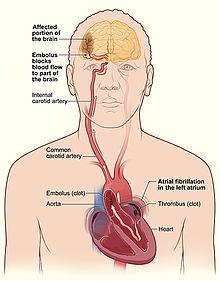 Meccanismo tromboembolico della fibrillazione atriale: embolizzazione cerebrale di frammenti di trombo ad origine dall'atrio sinistro o dall'auricola sinistra