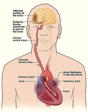 coronary artery disease prevention