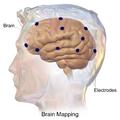 Blausen 0113 BrainMapping Electrodes.png