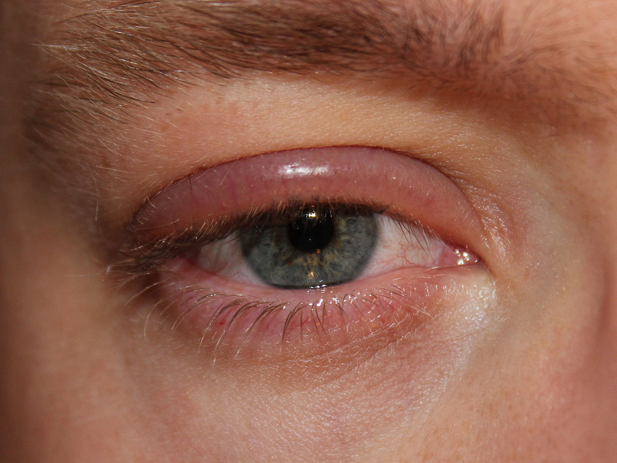 blepharitis wikipedia. Black Bedroom Furniture Sets. Home Design Ideas