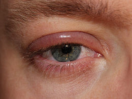Description de l'image Blepharitis.JPG.