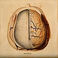 Brain; dissection showing the top of the brain, with the dur Wellcome V0008411.jpg