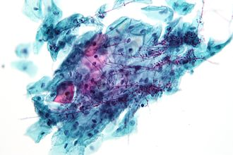 Pathogenic fungus - Candida. Pap test specimen. Pap stain.