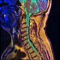 Cervical spine MRI T1FSE T2frFSE STIR 08.jpg