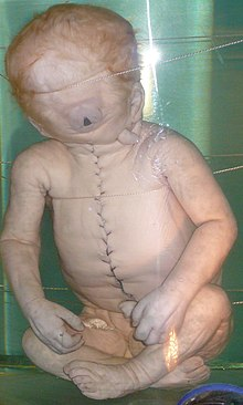 Child with Cyclopia.jpg