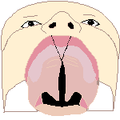 Cleft palate 2 bot.png