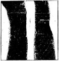 Curie - La Radiologie et la guerre, 1921 (page 77 crop).jpg