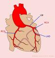 De-Coronary anatomy (CardioNetworks ECGpedia).png